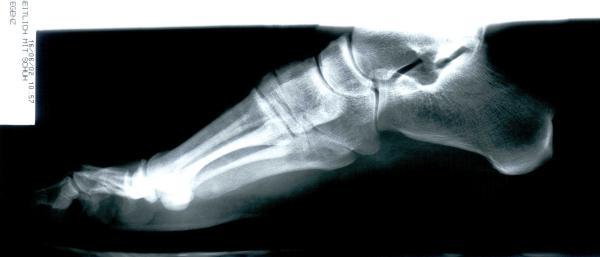 Röntgen von einem Fuß
